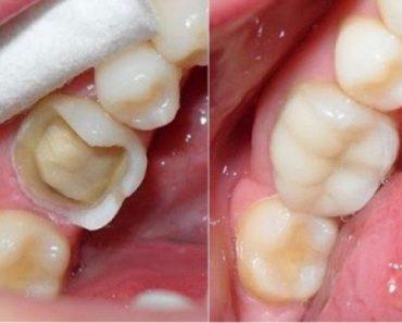Răng bị mẻ cần được điều trị sớm để tránh những hậu quả nghiêm trọng về sau