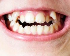 Răng mọc lộn xộn ảnh hưởng đến sức khỏe và thẩm mỹ