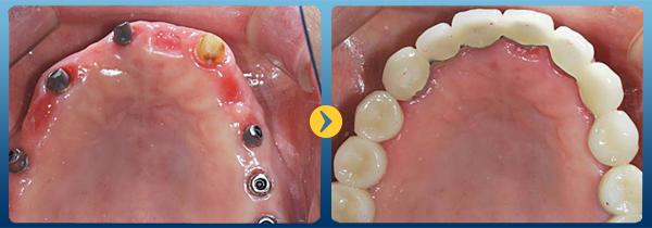 Hàm răng sau khi được cấy ghép Implant