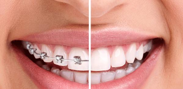 Răng đã được bọc sứ có độ bóng nhất định khiến khí cụ không thể giữ chắc trên răng