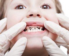 Tình trạng răng sâu ở bé