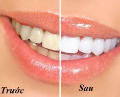 Trước và sau khi tẩy trắng răng