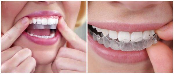 Tẩy trắng răng bằng thuốc tẩy trắng răngcó hại không?