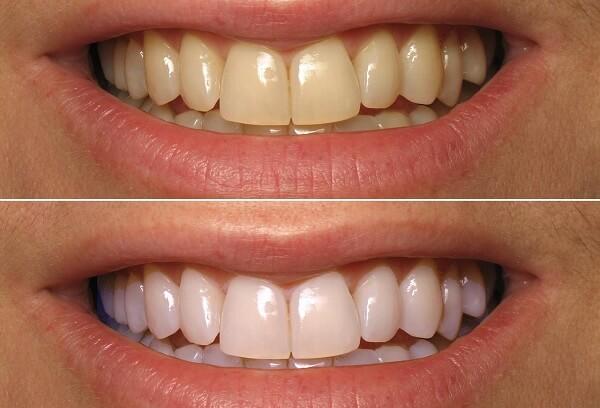 Tẩy trắng răng giúp bạn có nụ cười tự tin hơn