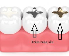 Phương pháp trám răng trong điều trị viêm tủy răng ở trẻ em