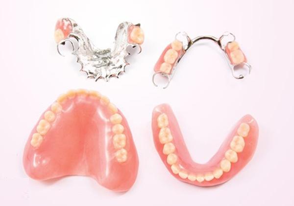 Trồng răng giả tháo lắp thẩm mỹ