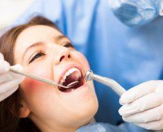 Trồng răng khểnh tiềm ẩn một số nguy hiểm nếu làm sai kỹ thuật