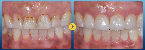 Hình ảnh răng trước và sau khi điều trị mòn cổ chân răng