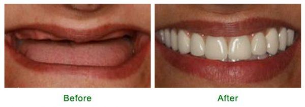 Trước sau khi lắp răng giả