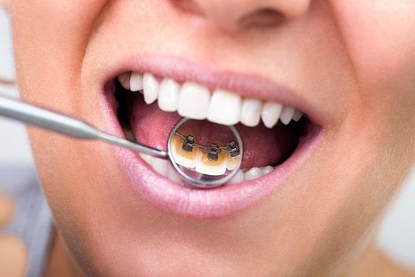 Niềng răng mặt trong mang lại tính thẩm mỹ cao cho bệnh nhân