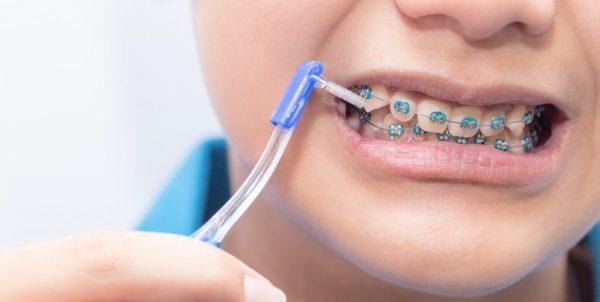 Chế độ vệ sinh răng miệng khi niềng răng mắc cài cần phải lưu ý cẩn thận