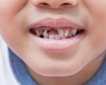 Trẻ em sâu răng có nên hàn răng hay không?