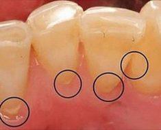 Vôi răng làm tăng nguy cơ nhiễm các bệnh lý răng miệng khi mang thai