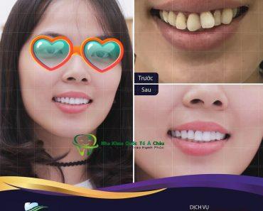 Hình ảnh thực tế khách hàng bọc răng sứ tại Nha Khoa Quốc Tế Á Châu