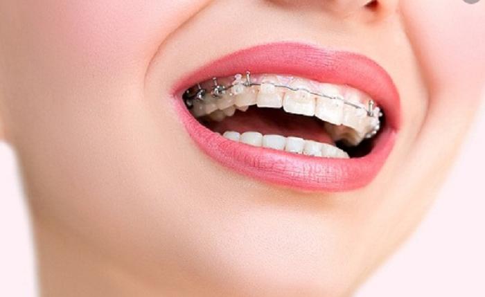 Gắn mắc cài lên răng