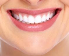 Một hàm răng đều, trắng, khỏe là hàm răng đẹp