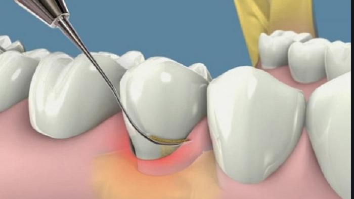 Lấy cao răng mang lại nhiều tác dụng