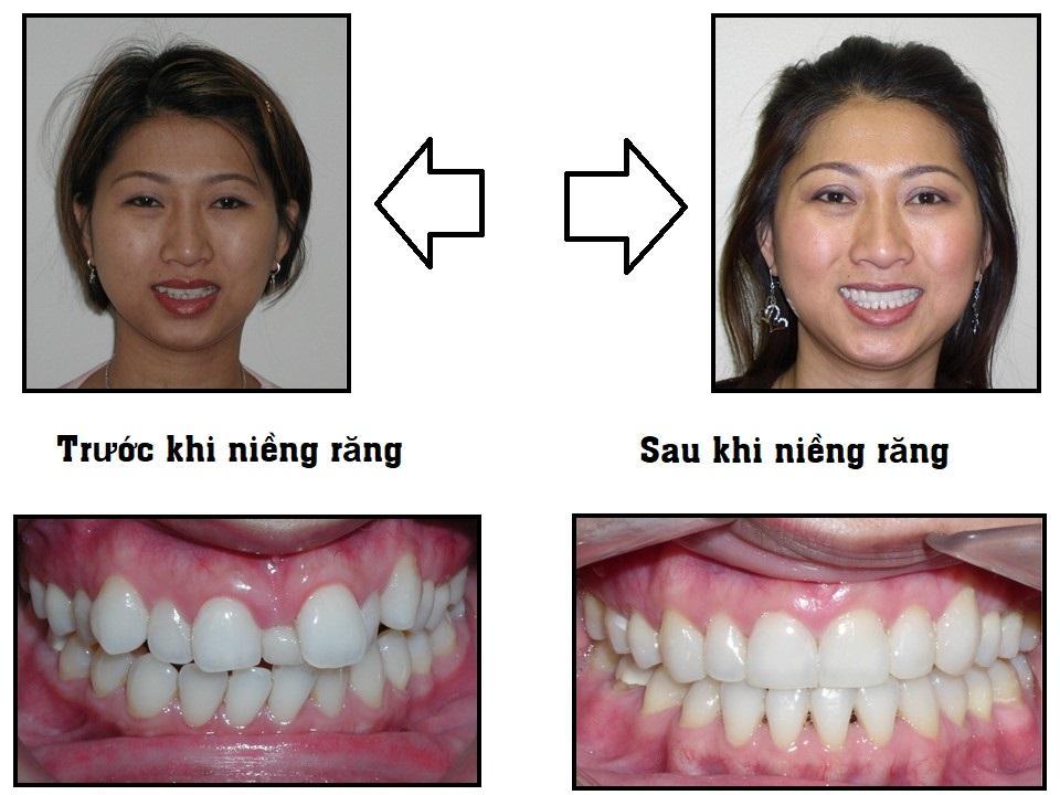 Trước và sau khi niềng răng tại Nha Khoa