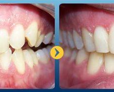 Trước và sau khi niềng răng khấp khểnh, lệch lạc