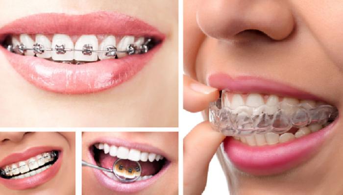Quy trình niềng răng chuẩn nhất