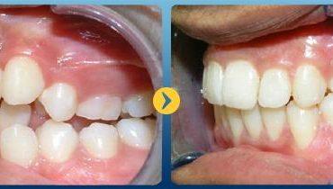 Hình ảnh trước và sau niềng răng thực tế tại Nha Khoa Quốc Tế Á Châu