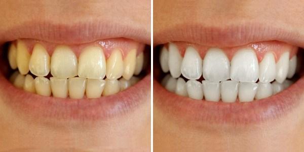 Phương pháp tẩy trắng răng Laser Whitening hiện đại