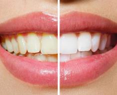 Sự khác biệt trước và sau khi tẩy trắng răng