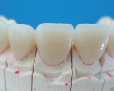 Răng sứ Ceramill có nhiều ưu điểm